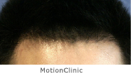 MotionClinic