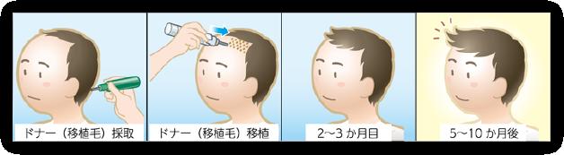 自毛植毛の流れ