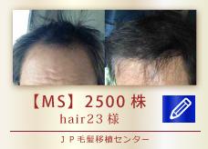 【MS】2500株