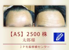 【AS】2500株