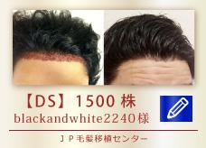 【DS】1500株