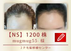 【NS】1200株