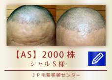 【AS】2000株
