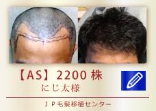 【AS】2200株