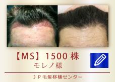 【MS】1500株