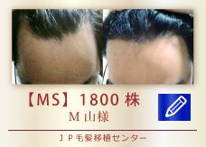 【MS】1800株