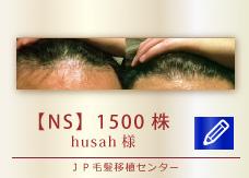 【NS】1500株