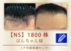 【NS】1800株