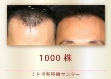 1000株