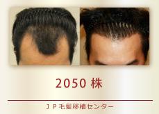 2050株