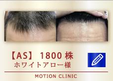 【AS】 1800株