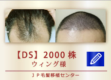 【DS】 2000株