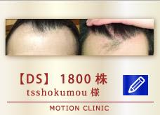 【DS】1800株