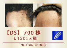 【DS】700株