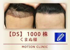 【DS】1000株