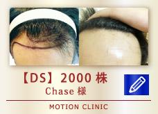 【DS】2000株