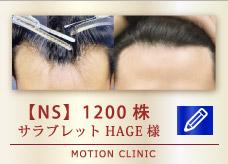 【NS】 1200株