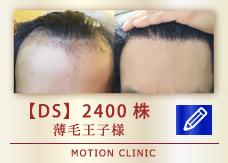 【DS】2400株