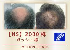 【NS】 2000株