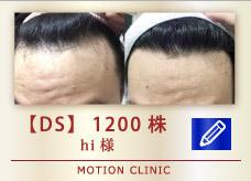 【DS】1200株