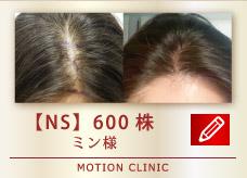 【NS】 600株