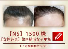 【NS】 1500株