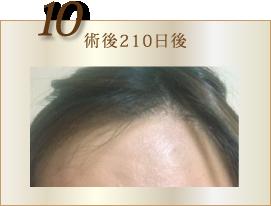 10:術後210日後