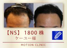 【NS】 1800株