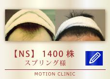 【NS】 1400株