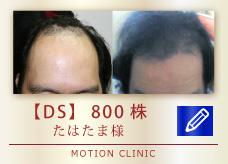 【DS】 800株