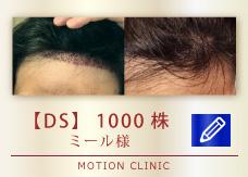 【DS】 1000株