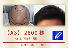 【AS】 2800株