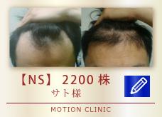 【NS】 2200株