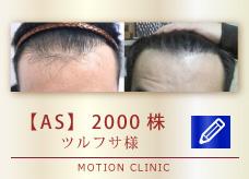 【AS】 2000株