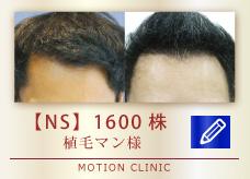 【NS】 1600株