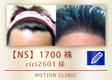 【NS】 1700株