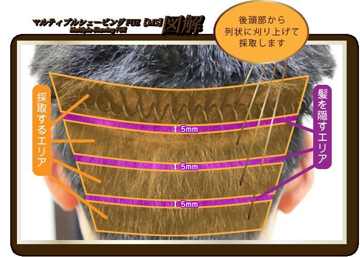 マルティプルシェービングFUE【MS】 図解